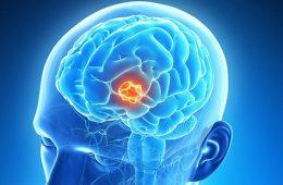 این ۸ نشانه تومور مغزی را نادیده نگیرید-سلامت