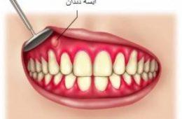 درمان خانگی عفونت و آبسه دندان-سلامت