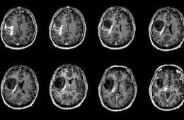 قند تومورهای مغزی را تغذیه کرده و آنها را تهاجمیتر میکند-سلامت
