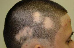 """علل ریزش سکهای """"مو"""" چیست؟-سلامت"""