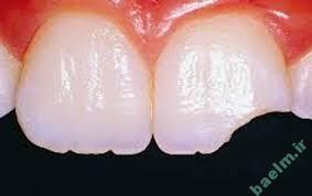 تعبیر خواب  دیدن یا افتادن دندان در خواب