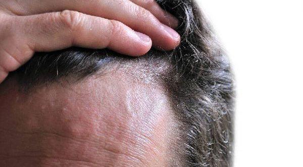 نکاتی طلایی برای پر پشت کردن موهایتان