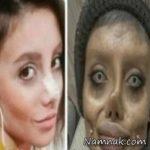 عکس های سحر تبر قبل و بعد جراحی