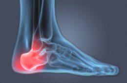 رایجترین علل درد پاشنه پا-سلامت