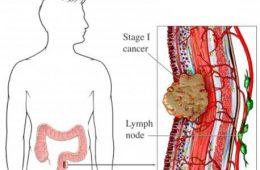 موثرترین راهکارهای مصونیت از سرطان رودهی بزرگ-سلامت