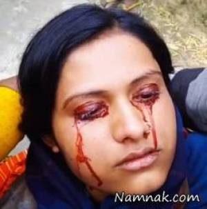 تصاویری دردناک از خون گریه کردن زن جوان هندی