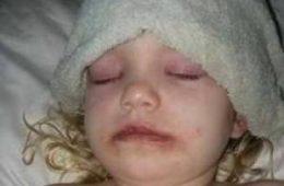 نتیجه ی دلخراش و دردناک آرایش دختر بچه۳ ساله