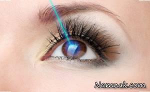 مراقبت های پس از عمل لیزیک چشم