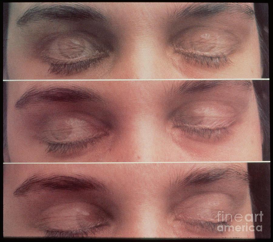 حرکت تند چشم در خواب REM