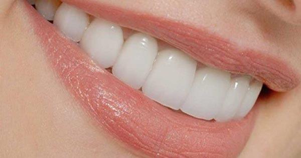 عکس کاربردهای روغن لیمو - سفید کردن دندان