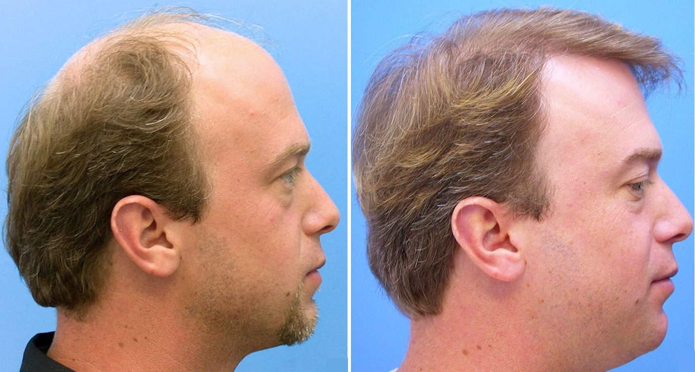 عکس کاشت مو,کاشت مو,روش های کاشت مو