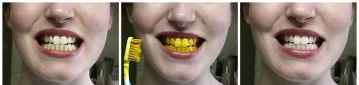 روشهای سفید کردن دندان با زردچوبه