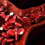 تالاسمی ماژور، علائم و درمان آن