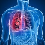 بیماری COPD یا انسداد مزمن ریوی
