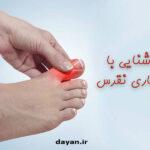 علائم و درمان بیماری نقرس