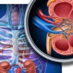 علل و درمان سنگ کلیه