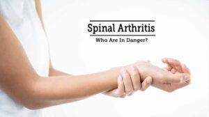 آرتروز چیست /درمان آرتروز نخاعی