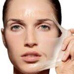 لایه برداری پوست با روش شیمیایی