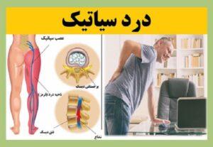 درمان درد سیاتیک