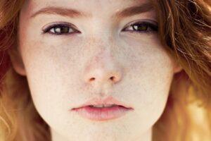 روشهای از بین بردن خال و کک و مک