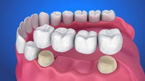 بریچ دندان