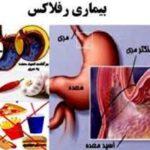 بیماری ریفلاکس معده