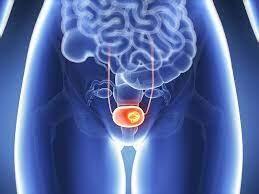 درمان سرطان مثانه